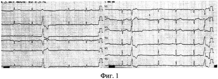 Способ трансрадиальной катетерной абляции при неишемических желудочковых нарушениях ритма с локализацией в левом желудочке сердца