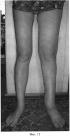 Способ лечения вторичных лимфедем нижних конечностей ii-iii стадии