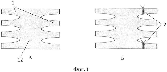 Способ аллопластики при послеоперационных вентральных грыжах
