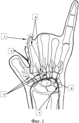 Способ формирования первого пальца кисти