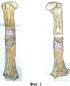 Способ пересадки кровоснабжаемых надкостничных трансплантатов плечевой кости для лечения ложных суставов