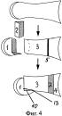 Способ хирургического лечения больных с вальгусной деформацией первого пальца стопы