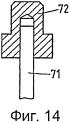 Устройство и способ закрепления шовного фиксатора в твердой ткани