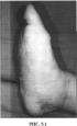 Способ хирургического лечения диабетической остеоартропатии среднего отдела стопы в стадии трофических нарушений