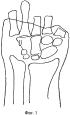Способ реконструкции первой пястной кости при обширных дефектах мягких тканей культи кисти