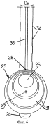 Орально-гастрический зонд для продольной гастроэктомии
