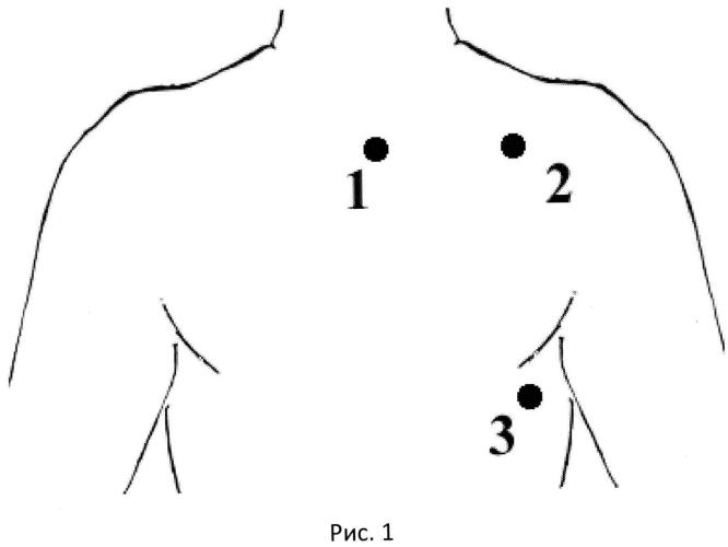 Способ выбора точек для аппроксимированных отведений электрокардиограммы