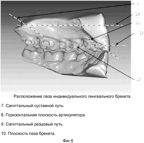 Лингвальный индивидуальный ортодонтический аппарат и способ ортодонтического лечения с учетом параметров височно-нижнечелюстного сустава