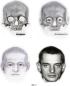 Способ определения центра радужной оболочки глаза при графической реконструкции лица по черепу