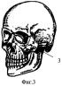 Способ фиксации переломов скуловой кости металлическими спицами