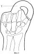 Способ реконструкции кисти при ампутационных культях всех пальцев