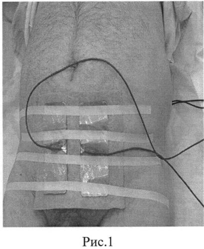 Способ лечения рака предстательной железы