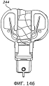Способ и устройство для выполнения артропластики коленного сустава