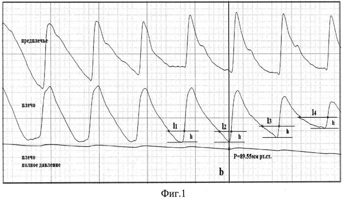 Способ определения артериального давления