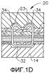 Имплантируемая кассета с крепежными элементами, имеющая неравномерную конструкцию