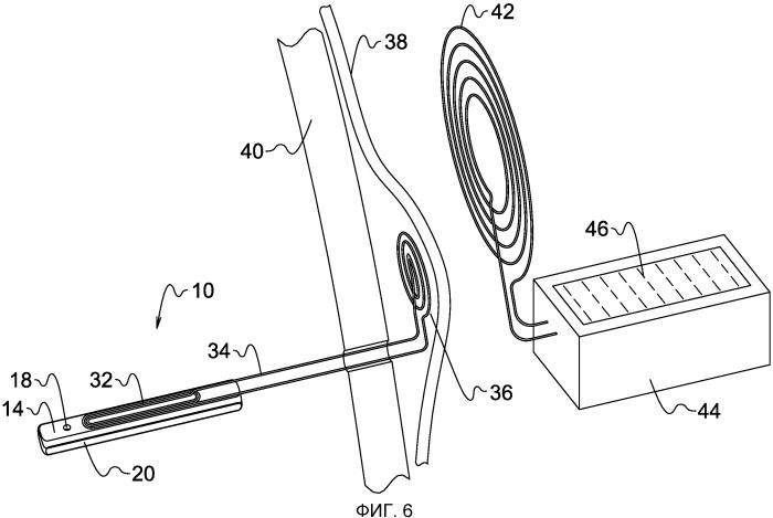 Имплантируемая система шунта и связанные с ней датчики давления