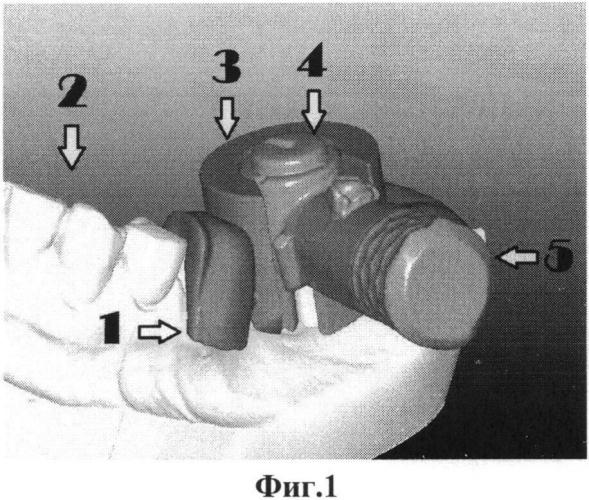 Направляющий шаблон для установки имплантатов и способ его изготовления