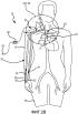 Система и способ увеличения наружного диаметра вен