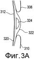 Податливые динамические зоны перемещения для контактных линз