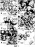 Контроль заражения членистоногими применением частиц, содержащих энтомопатоген и воск