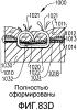 Имплантируемая кассета с крепежными элементами, содержащая опорный фиксатор