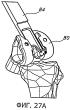 Способы и устройства для артропластики коленного сустава