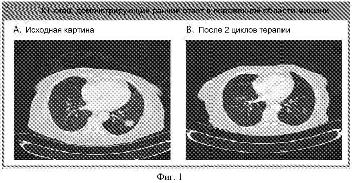 Способы лечение рака поджелудочной железы