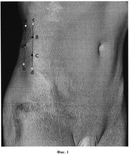 Способ лечения артериальной ишемии нижних конечностей при дистальном типе поражения методом лапароскопической ретроперитонеальной поясничной симпатэктомии