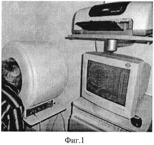 Способ определения характеристик зрения и устройство для его осуществления