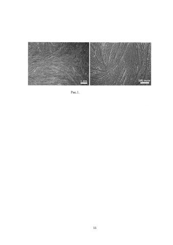 Способ получения миобластов, использование биоптата десны, препарат миобластов для лечения патологий мышечной ткани и способ его получения