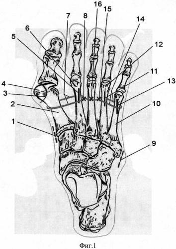Способ хирургического лечения поперечной распластанности стопы