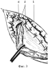 Способ пластики пахового канала при паховых грыжах
