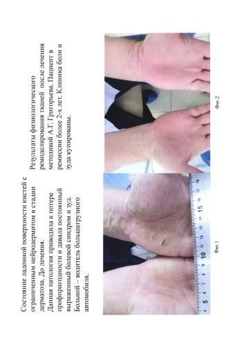 Криогенный способ лечения кожи