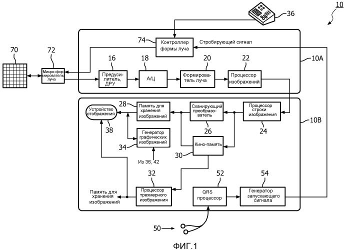 Автоматизированная развертка и экспорт двумерных ультразвуковых изображений трехмерных объемов