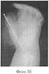 Способ реконструкции первого пальца кисти при врожденной полидактилии