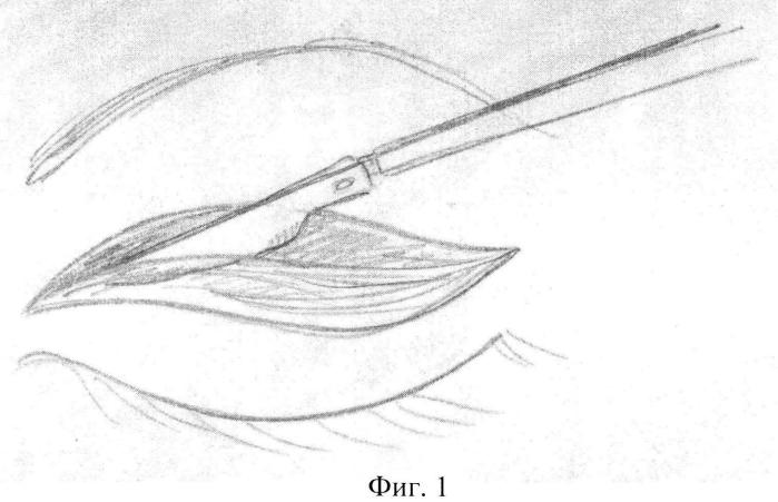 Способ хирургической коррекции а-образной деформации верхних век