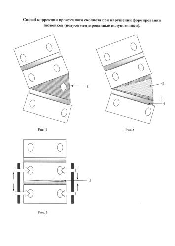 Способ коррекции врожденной сколиотической деформации позвоночника при полусегментированном полупозвонке у детей