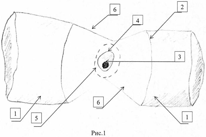 Способ хирургического лечения язвенной болезни двенадцатиперстной кишки, осложненной кровотечением и пенетрацией в поджелудочную железу