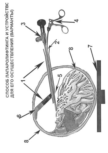 Способ проведения лапароскопического вмешательства и устройство для его осуществления (варианты)