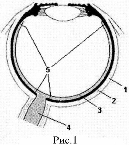 Способ получения органной культуры хороидально-пигментного комплекса из глаза взрослого донора-трупа