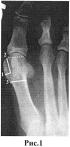 Способ коррекции оси 1 плюсневой кости при лечении hallux valgus
