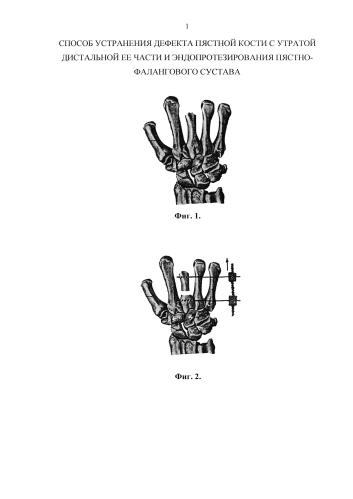 Способ устранения дефекта пястной кости с утратой дистальной ее части и эндопротезирования пястно-фалангового сустава