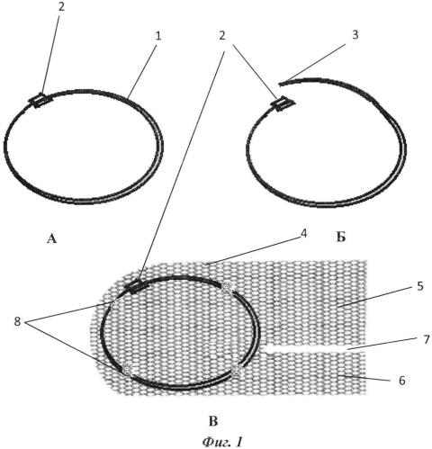 Устройство для аллопластики при паховых грыжах