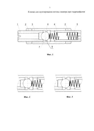 Клапан для шунтирования потока ликвора при гидроцефалии