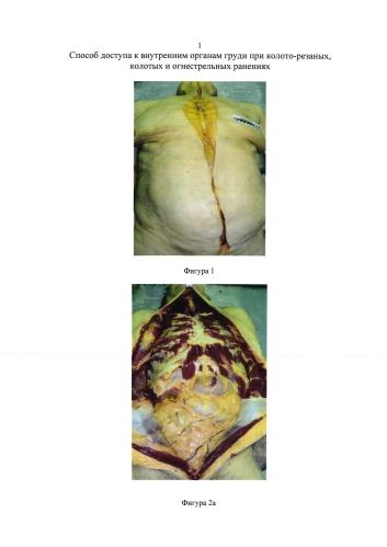 Способ доступа к внутренним органам груди при колото-резаных, колотых и огнестрельных ранениях