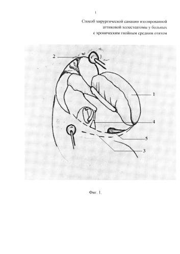 Способ хирургической санации изолированной аттиковой холестеатомы у больных с хроническим гнойным средним отитом