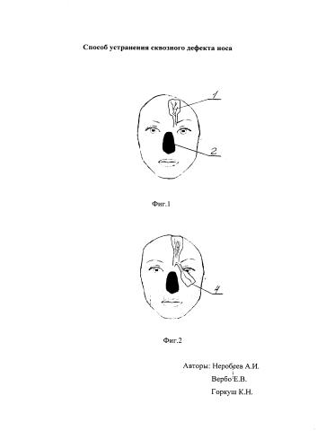 Способ устранения сквозного дефекта носа