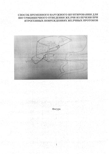 Способ временного наружного шунтирования для внутрикишечного отведения желчи из печени при ятрогенных повреждениях желчных протоков