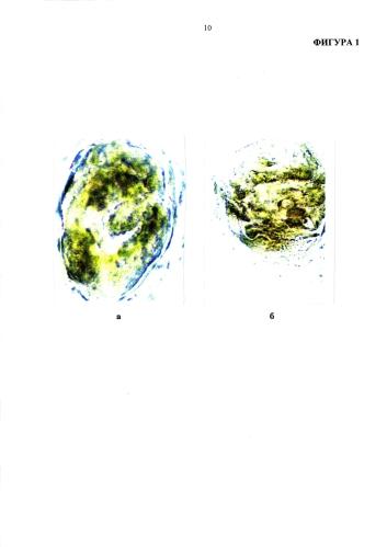 Способ определения снижения эстриола в гомогенате плаценты в связи с увеличением синтеза фосфодиэстеразы при обострении цитомегаловирусной инфекции на третьем триместре гестации