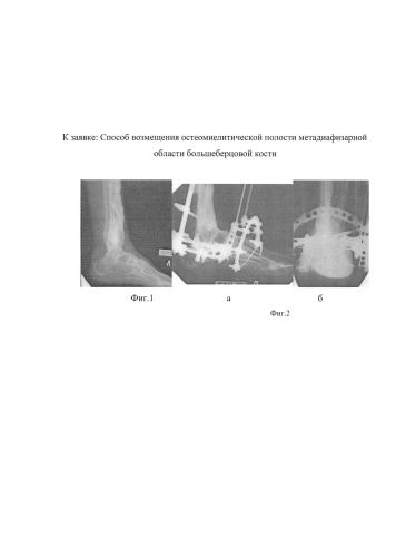 Способ возмещения остеомиелитической полости метадиафизарной области большеберцовой кости